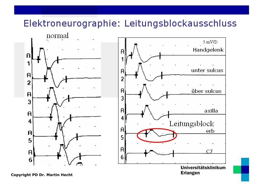 ALS Diagnostik - Elektroneurographie